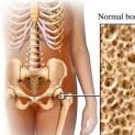 Cegah Osteoporosis Dengan Konsumsi Makanan Kaya Alkali